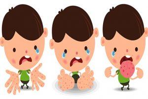 El ayak ağız hastalığı nedir? Sebepleri, belirtileri, tedavisi