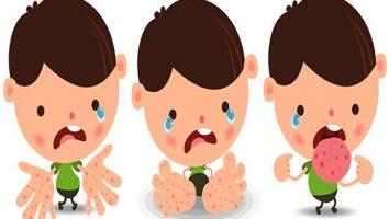 El ayak ağız hastalığı nedir Sebepleri, belirtileri, tedavisi