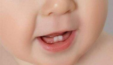 Bebeklerde diş çıkarma belirtileri, yapılabilecekler